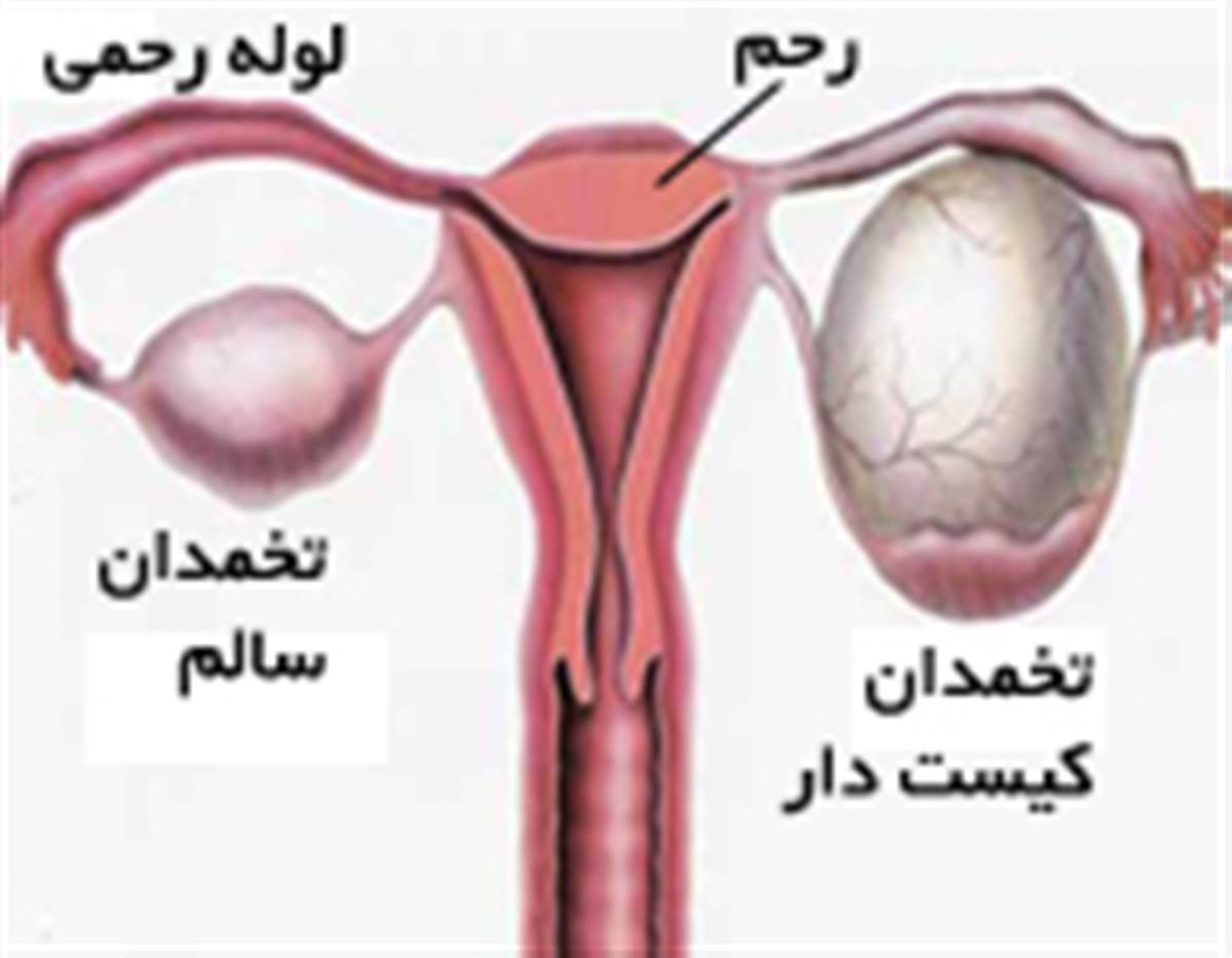 کیست تخمدان چه علائمی دارد؟