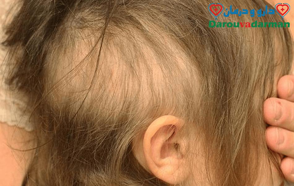 اختلال مو کندن چیست؟(تریکوتیلومانیا)