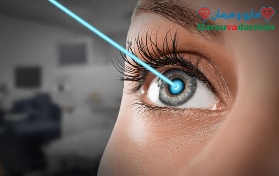 انواع عمل چشم برای نداشتن عینک