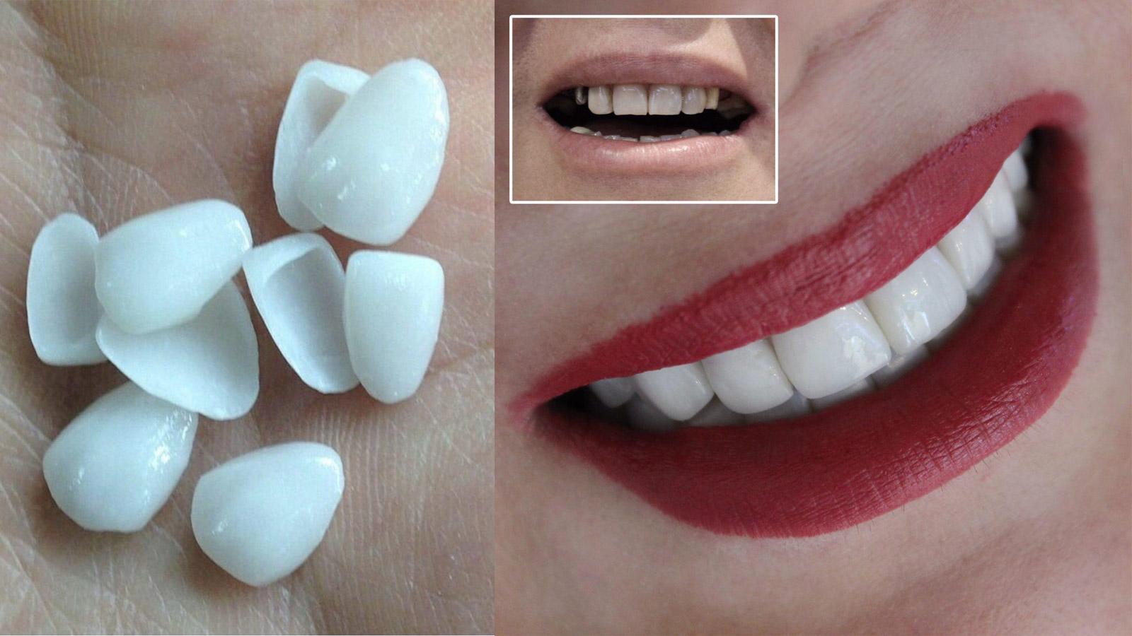 لمینت وروش های روکش دار کردن دندان