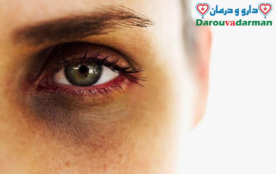 چگونه می توانم گودی های زیر چشم خود را از بین ببرم؟