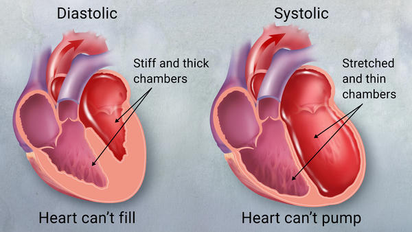 نارسایی قلبی سیستولیک چه علائمی دارد؟