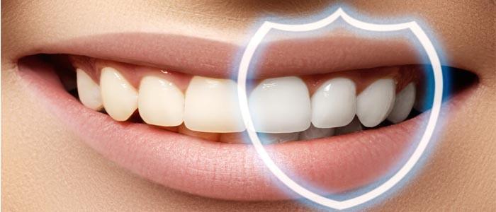 کامپوزیت دندان چه انواعی دارد؟