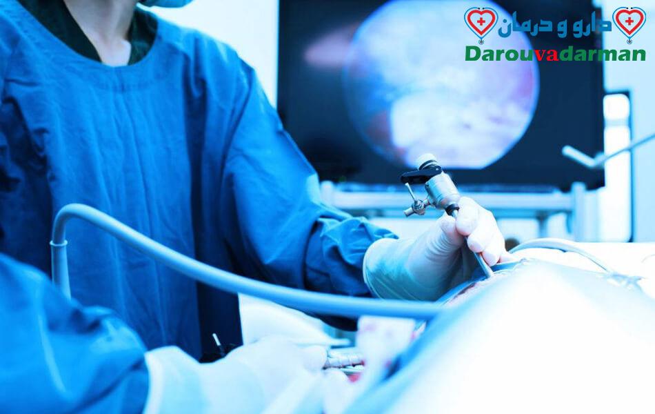 آیا در صورت اضافه وزن می توانید جراحی لاپاراسکوپی انجام دهید؟